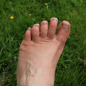 30 Tage mit Correct Toes